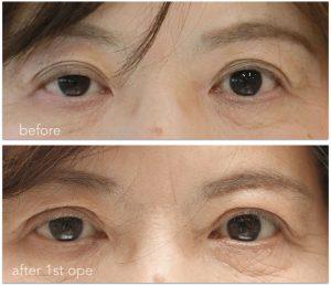 眼瞼下垂術前術後の写真。初回手術後、右の低矯正があります。