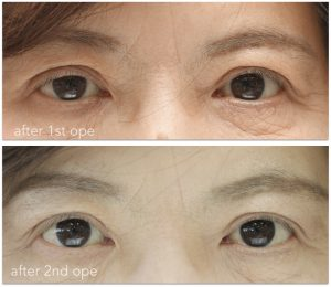 眼瞼下垂術前術後の写真。右低矯正の修正手術後。