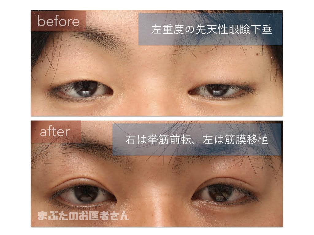 眼瞼 下垂 左右 差 修正
