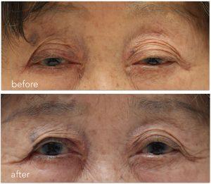 眼瞼下垂術前術後の写真。まぶしさを強く感じる。眼輪筋の緊張の亢進が確認される。