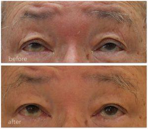 眼瞼下垂術前術後の写真。上方視の時にも眉間にチカラ