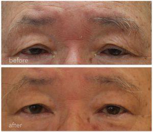 眼瞼下垂治療前後の写真。眉間の力が抜けた