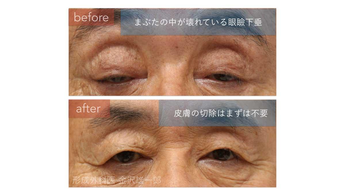 眼瞼下垂手術でまぶたの中を修復
