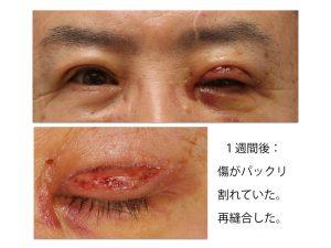 眼瞼下垂術後のトラブルの写真。痛々しい画像です。クリックすると大きくなります。