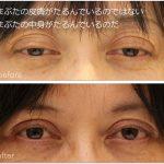 眼瞼下垂術前術後の写真。まぶたの中身の障害を解決する