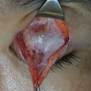 左まぶたの眼瞼下垂手術の写真。挙筋を栄養する血管が発達している。