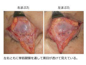 眼瞼下垂手術の写真。挙筋腱膜。挙筋を前転していないように見えるがこれで十分。