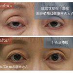 腱膜性眼瞼下垂の術前術後写真