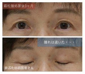 霰粒腫治癒の写真