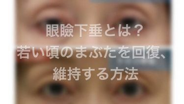 眼瞼下垂とは?若い頃のまぶたを回復、維持する方法とは?手術とは?形成外科医が解説