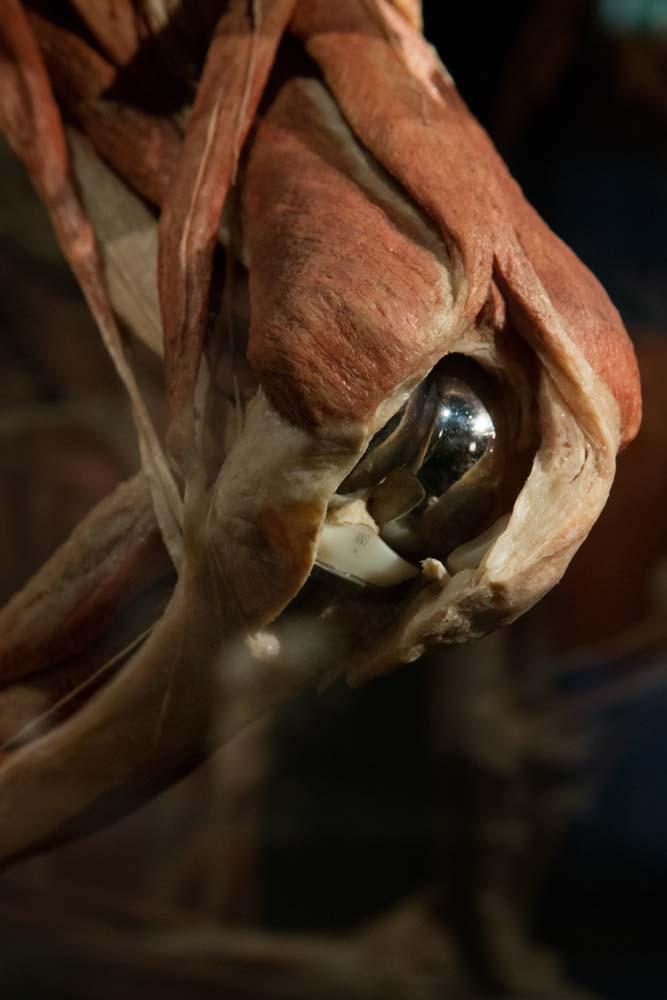 膝の人工関節