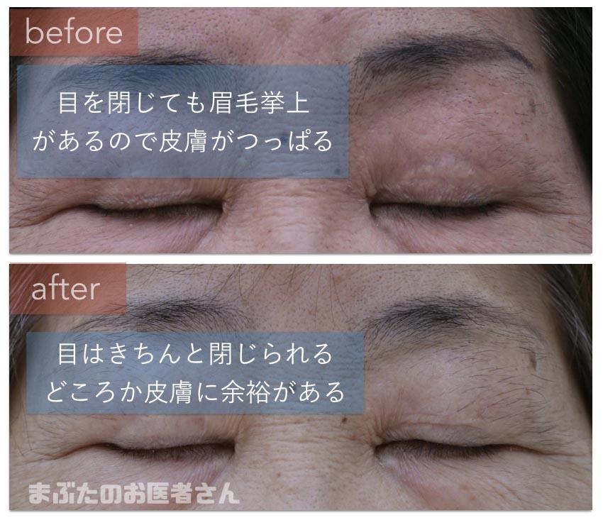 眼瞼下垂手術前後。閉瞼