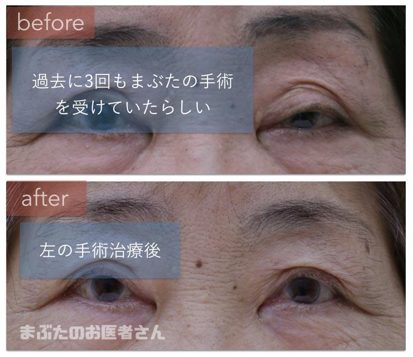 眼瞼下垂手術前後