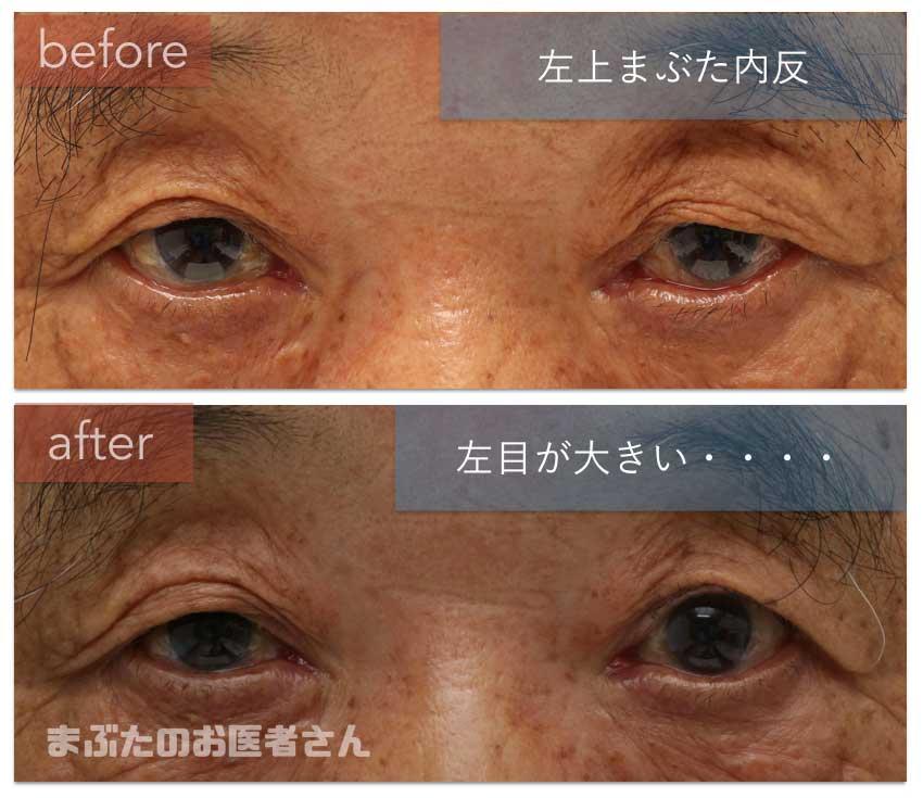 左上まぶた治療前後の写真