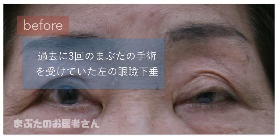 左の眼瞼下垂