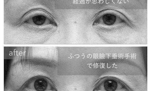 切らない眼瞼下垂手術の修正前後の写真