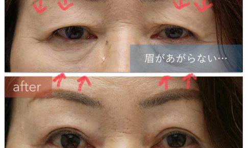 眼瞼下垂の治療後に眉挙上ができるようになった。