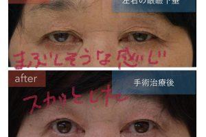 眼瞼下垂手術前後の写真。まぶしさが改善。