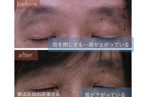 治療前は目を閉じた状態でも眉が上がっている