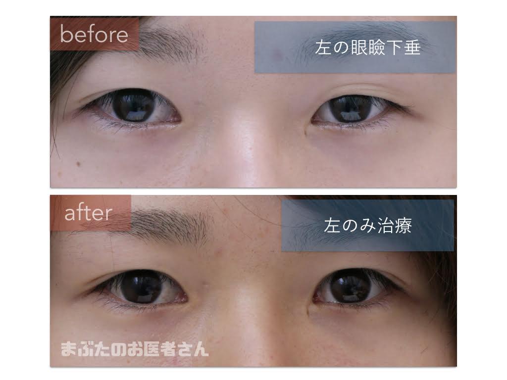 左の眼瞼下垂の手術前後の写真