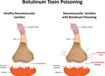 ボツリヌス毒素の作用機序