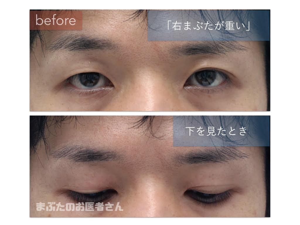 右眼瞼下垂