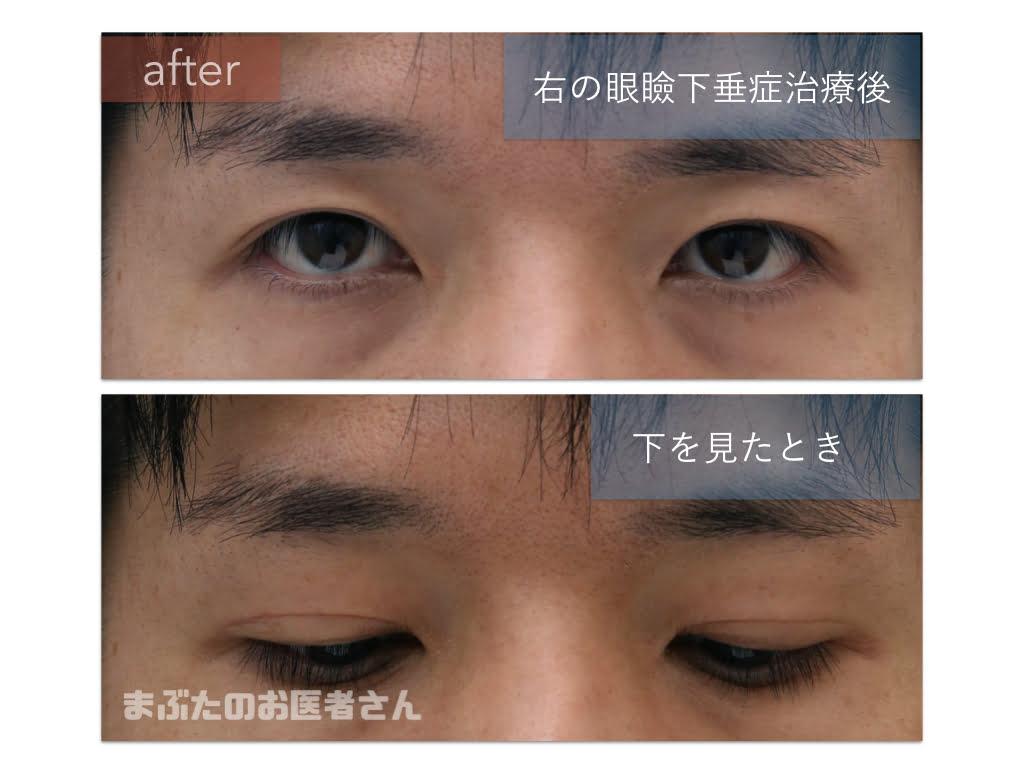 右の眼瞼下垂手術の後