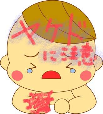 ヤケドの赤ちゃん