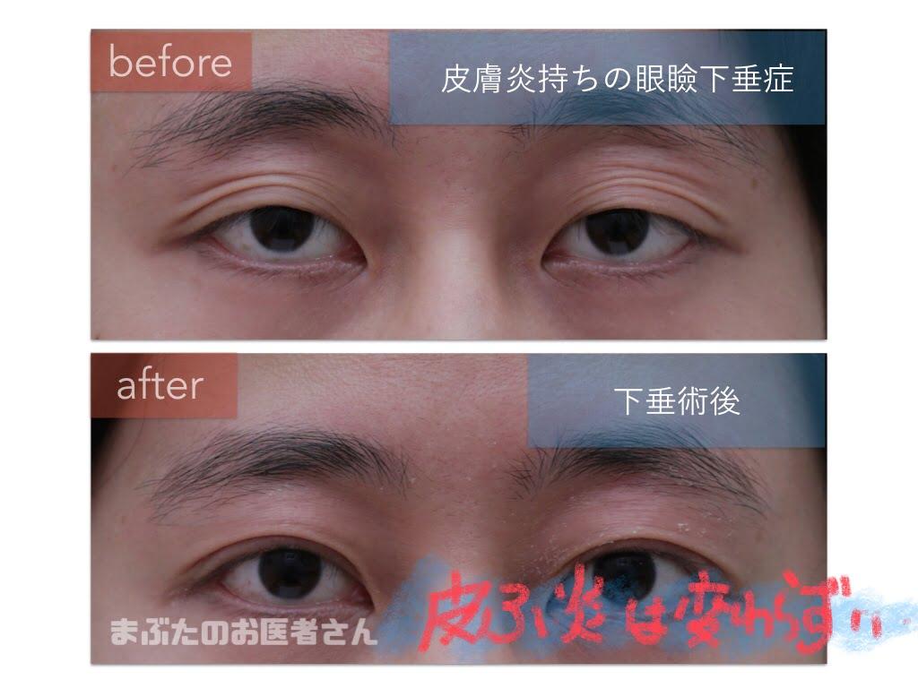 眼瞼下垂症手術(挙筋前転法)前後の写真