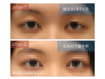 眼瞼下垂症手術後の写真