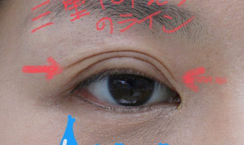 眼瞼下垂術後の写真
