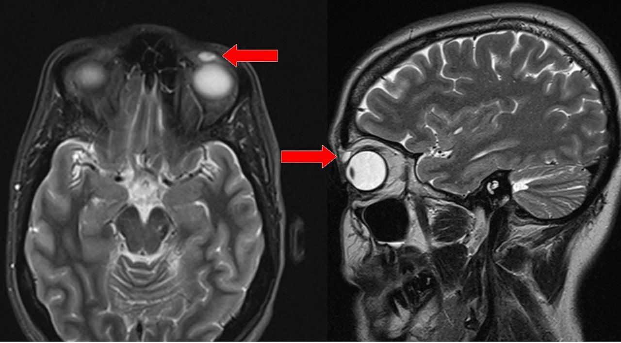 MRIで嚢胞が観察される