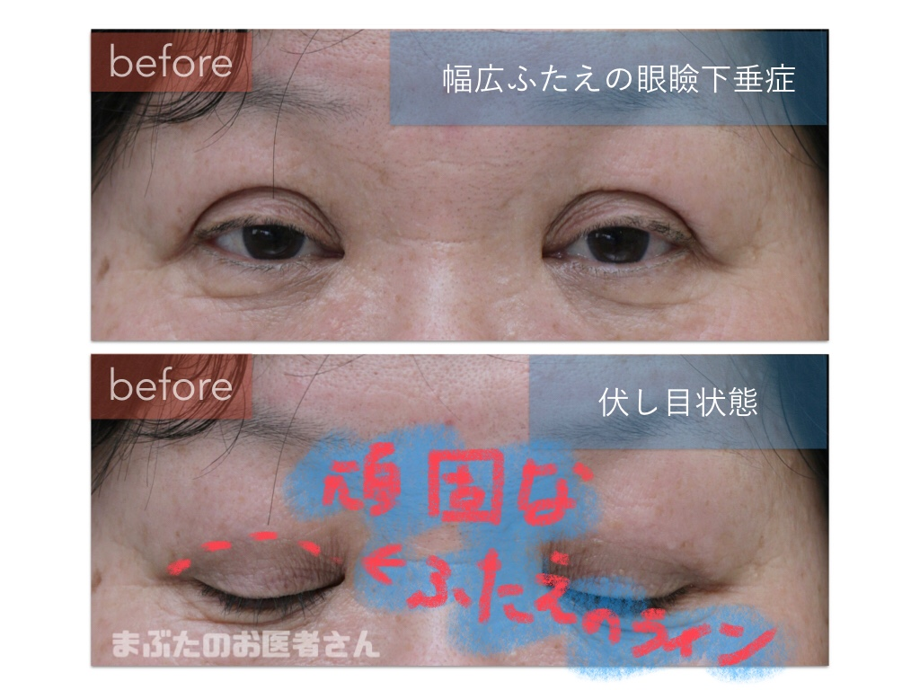 眼瞼下垂症の患者さん。仕上がりを予想するのが困難なタイプ