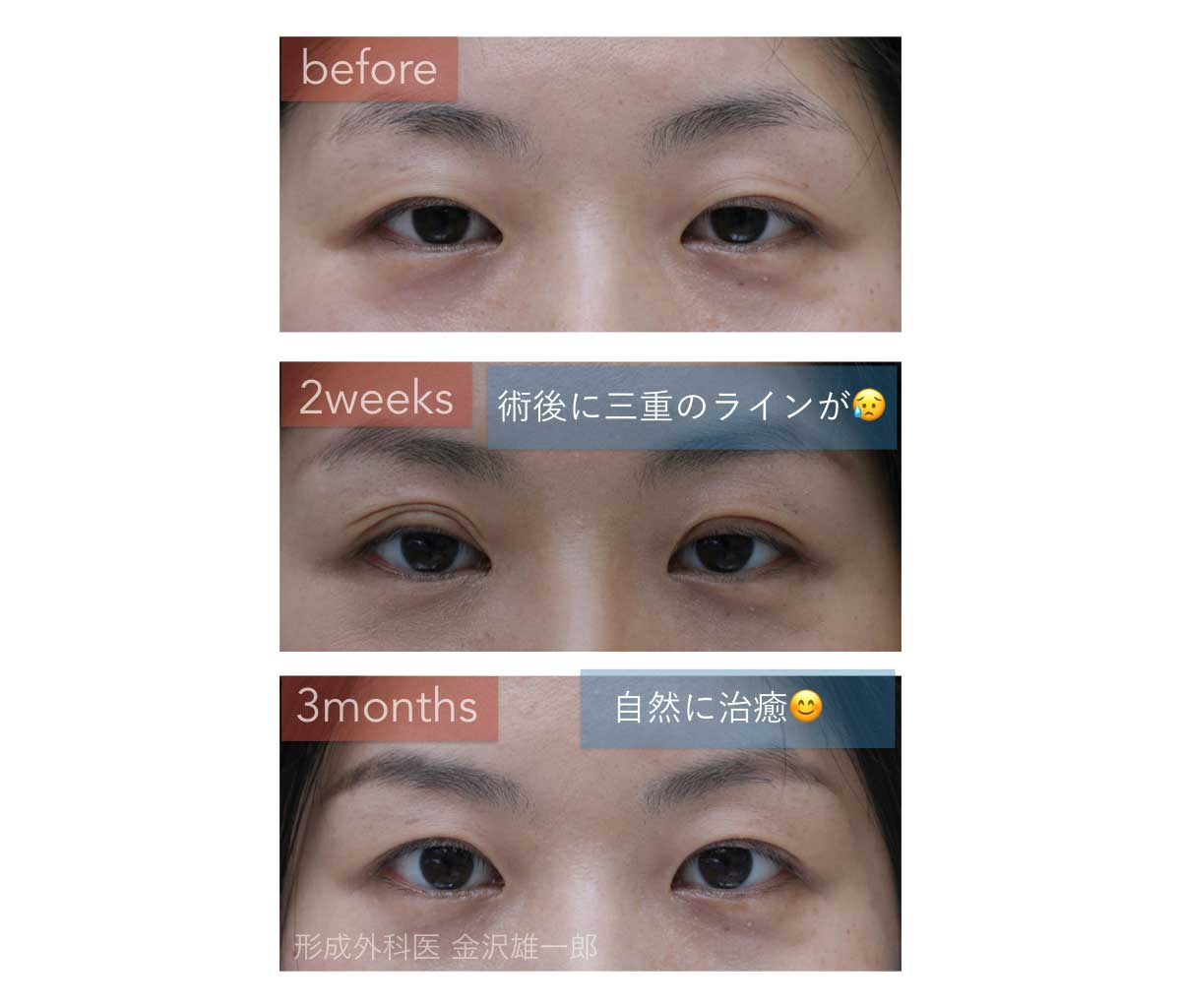 自然治癒した予定外重瞼線