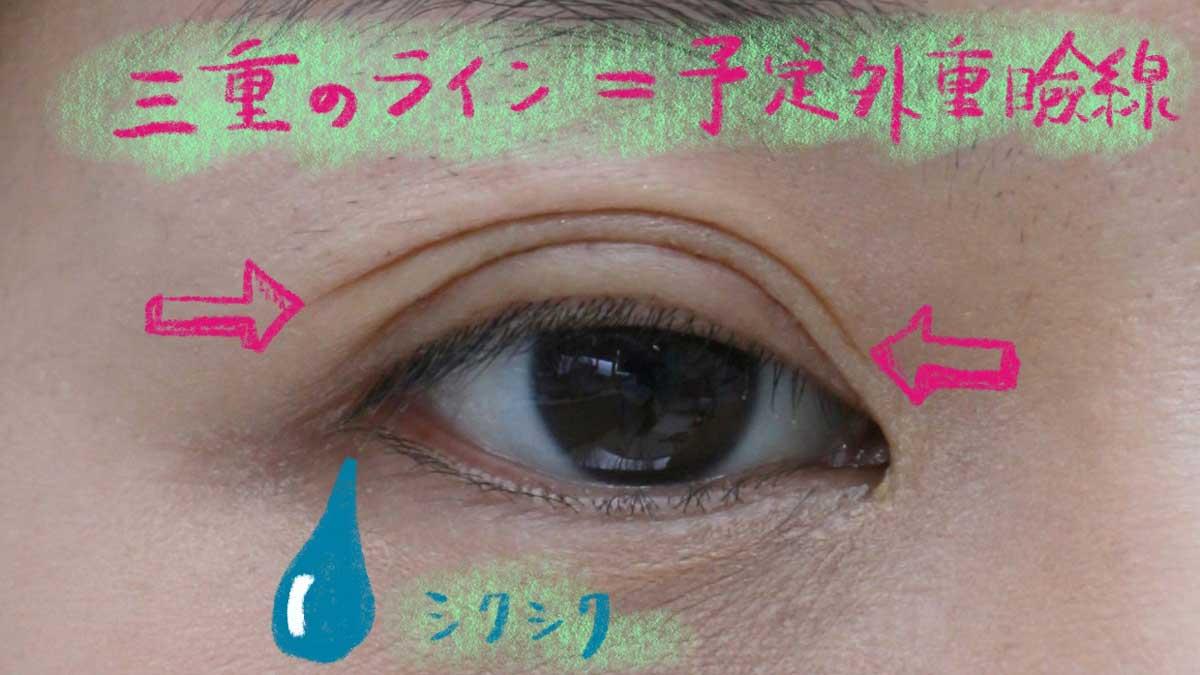予定外重瞼線