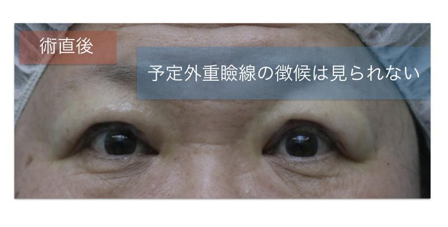 眼瞼下垂手術直後の写真。予定外重瞼線があらわれる雰囲気はない