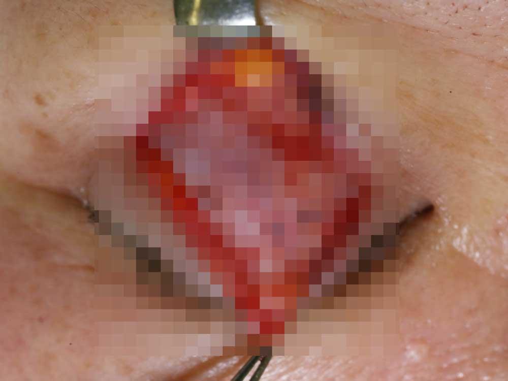 眼瞼下垂症手術の術中写真。腱膜固定の写真(右)