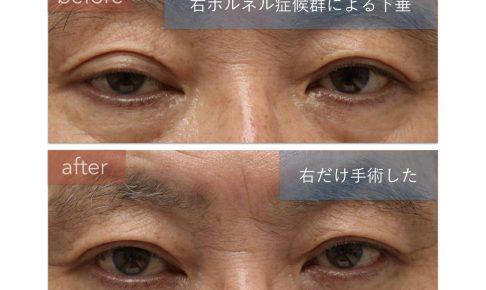 ホルネル症候群の治療前後の写真