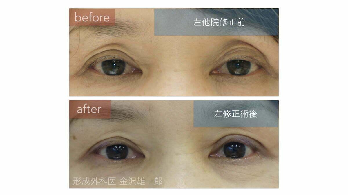 眼瞼下垂他院修正。左のみ