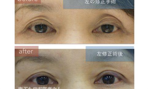 左の眼瞼下垂手術を行った