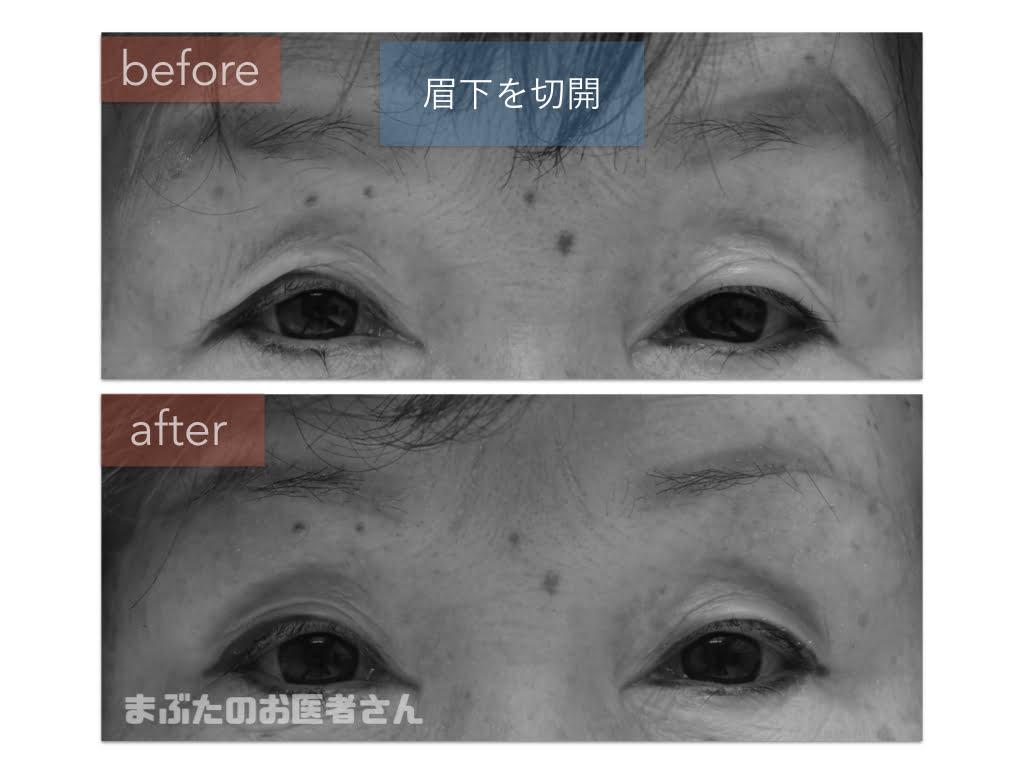 眉下切開の術前術後写真