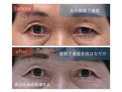 左だけの眼瞼下垂手術
