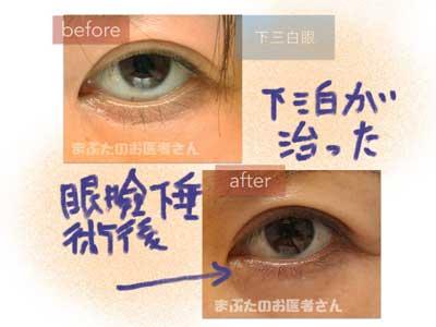 下三白眼の治療