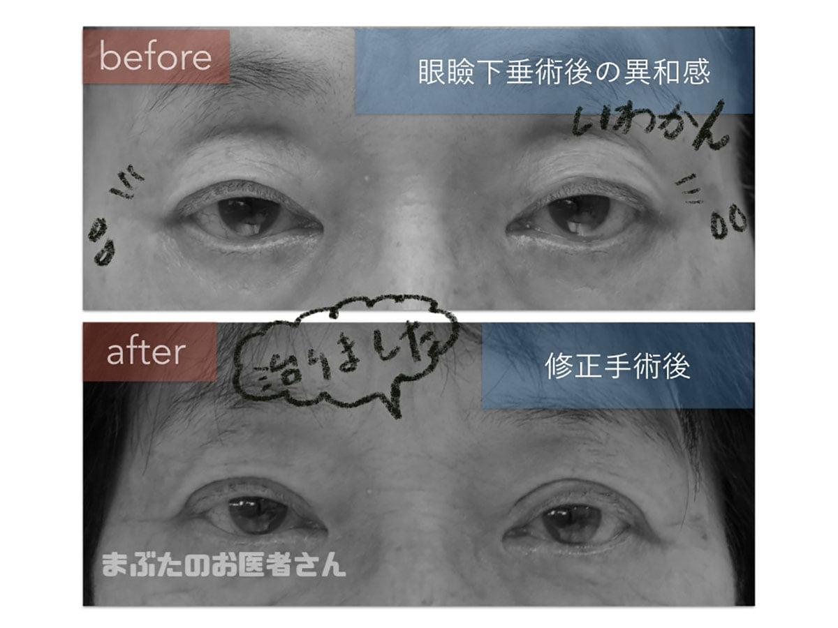 眼瞼下垂術後のまぶたの違和感