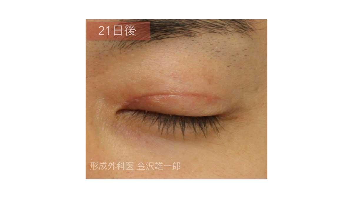 眼瞼下垂術後3週間