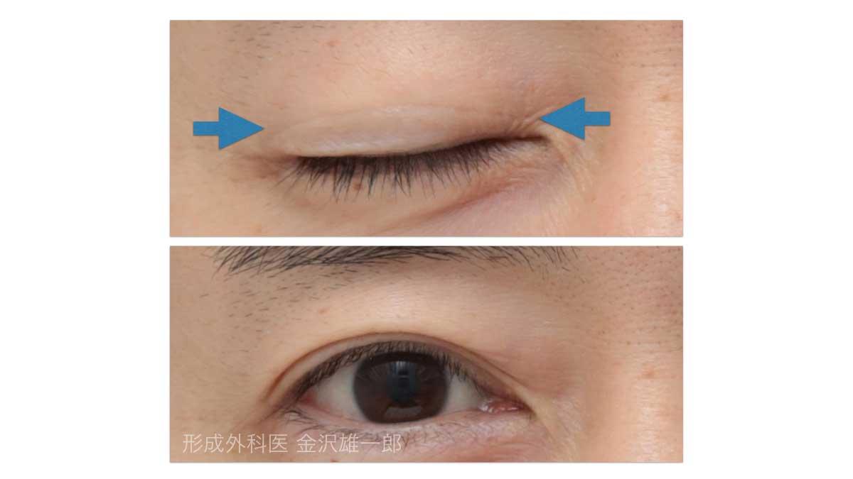 眼瞼下垂術後の傷