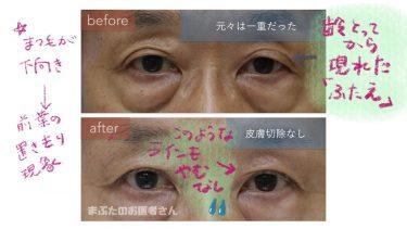 眼瞼下垂で確認すべきこと。前葉の下垂か?それとも後葉の下垂か?