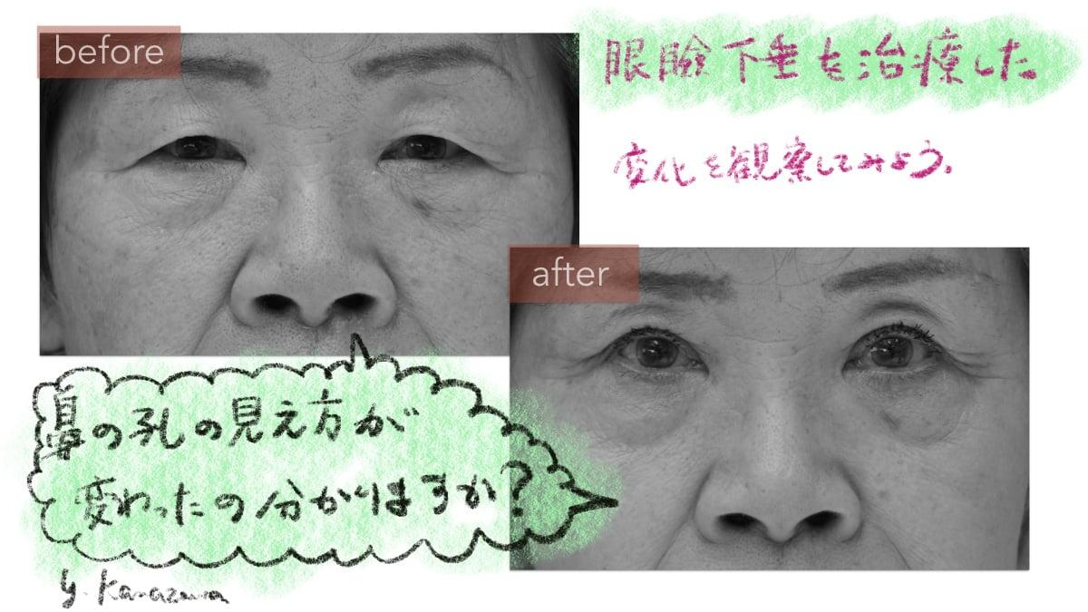 眼瞼下垂手術後に顔の角度が変わる