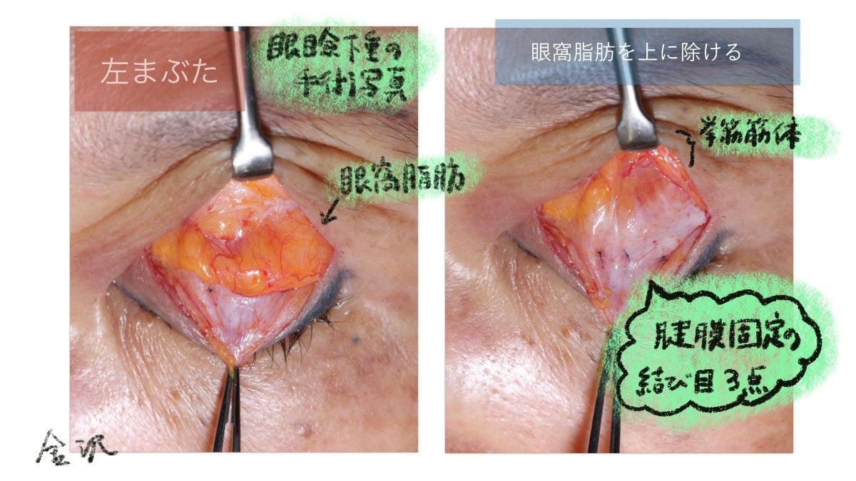 眼瞼下垂手術の時の眼窩脂肪の写真