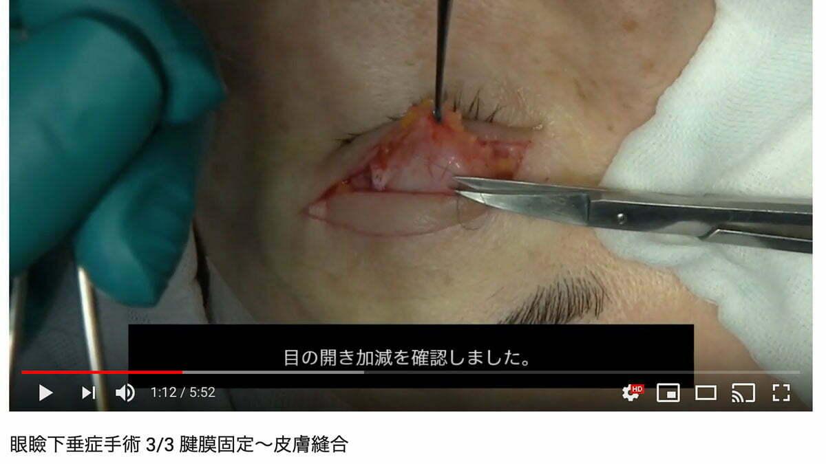 眼瞼下垂症手術の動画
